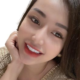 hình ảnh khách hàng làm răng sứ tại Hoa Vy Dentist