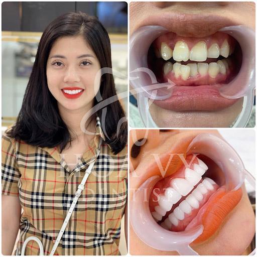 Bạn có thể áp dụng công nghệ bọc sứ cho răng mọc lệch