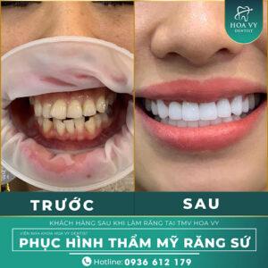 Hoa Vy Dentist - Nha khoa bọc mão răng sứ số 1 tại Hải Phòng