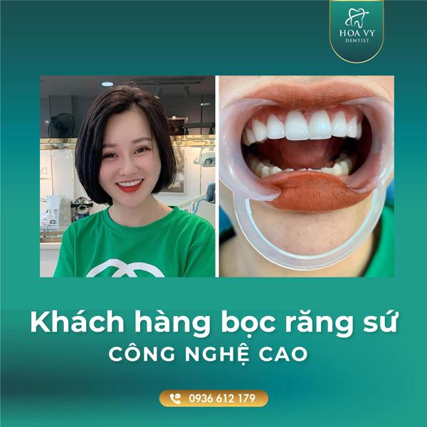 bọc răng sứ cho răng mọc lệch