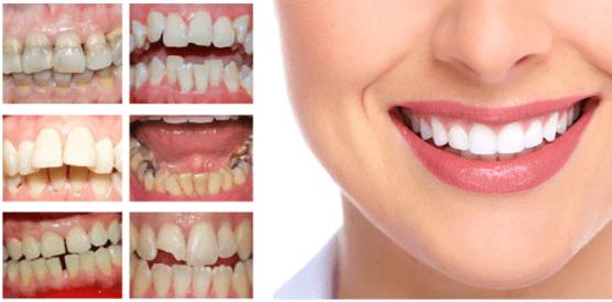 bọc răng sứ cho răng móm có được không?
