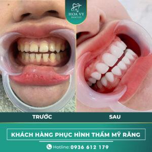 Bọc răng sứ cho răng thưa có độ bền lâu dài theo thời gian