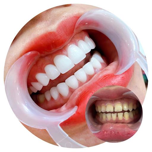 Bọc răng sứ có bền không là thắc mắc của nhiều khách hàng