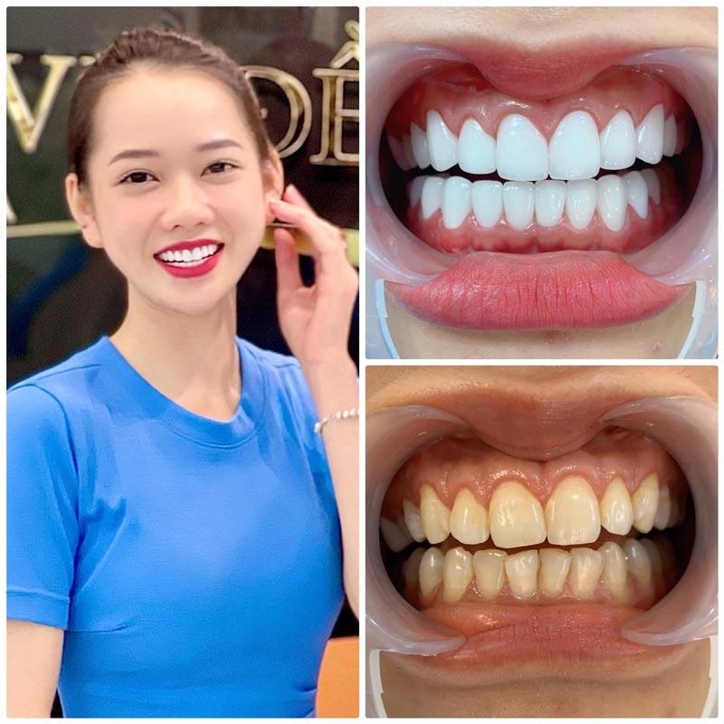 nguyên nhân bọc răng sứ bị cộm