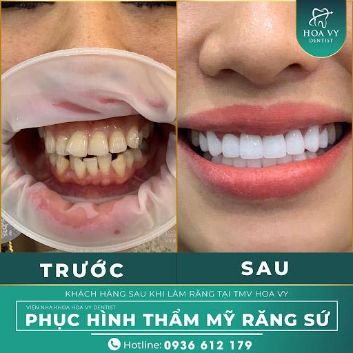 Bọc răng sứ có thể giải quyết triệt để tình trạng hô
