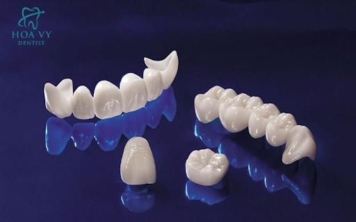 bọc răng sứ giá bao nhiêu tiền