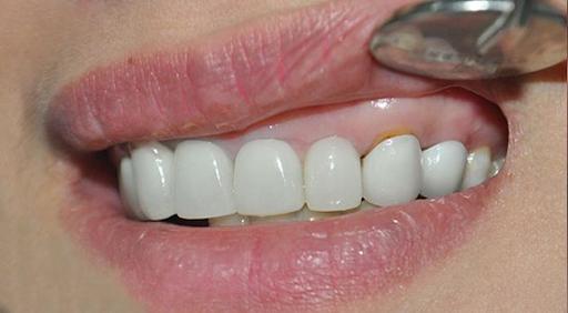 Dấu hiệu nhận biết bọc răng sứ hở