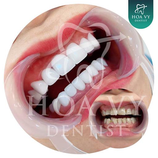 Sở hữu hàm răng sứ đẹp lung linh tại Hoa Vy Dentist Hải Phòng