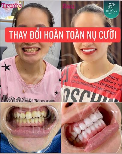 Bọc răng sứ cho răng cửa hô là phương pháp phục hình răng thẩm mỹ hiện đại đang được ưa chuộng