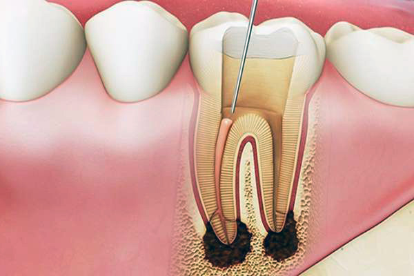 Việc lấy tủy răng sẽ dễ gây ảnh hưởng xấu khiến răng của bạn yếu đi