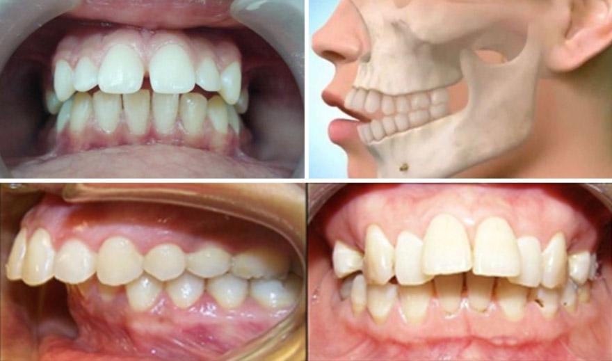 Đối với các trường hợp khách hàng bị hô do xương hàm hoặc hô nặng không thể bọc răng sứ chỉnh hô