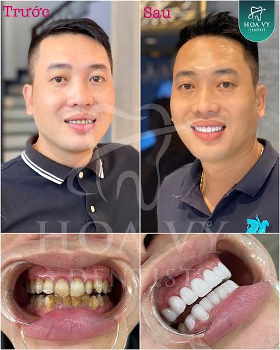 mài răng sứ có đau không