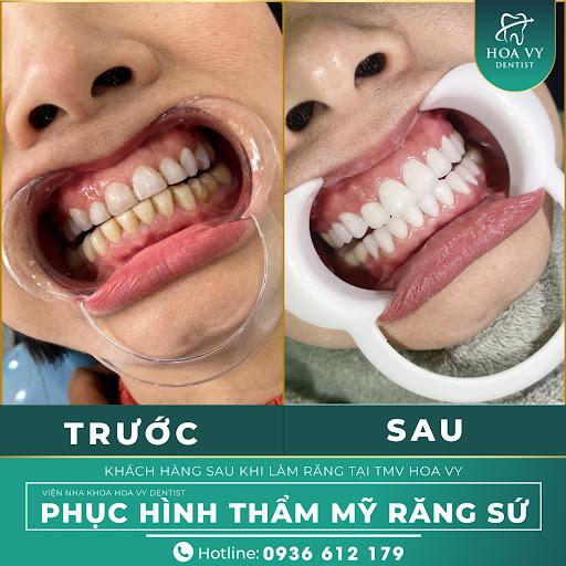 Bọc sứ là phương pháp phục hình răng chất lượng, đáng để bạn cân nhắc