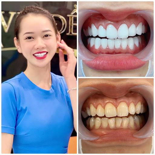 Mẫu răng bọc sứ Cercon được các chuyên gia khuyến khích sử dụng