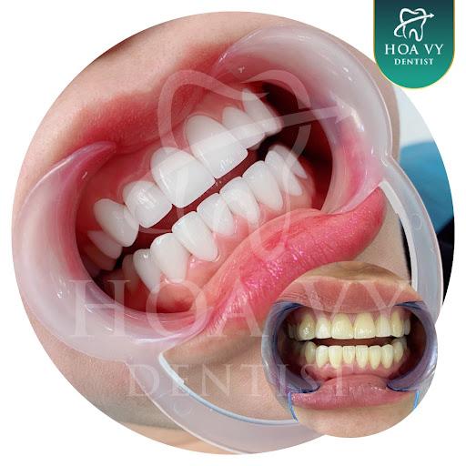 Răng toàn sứ được làm 100% sứ tinh khiết, đây là chất liệu an toàn và không gây kích ứng