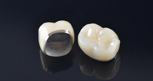 Bọc răng sứ kim loại có thực sự tốt như bạn đã biết?