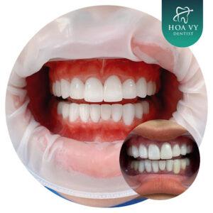 Bọc răng sứ thẩm mỹ đem lại nụ cười đẹp, thẩm mỹ