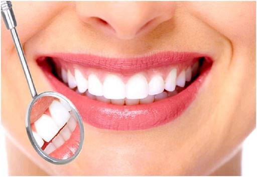 bọc răng sứ kim loại tại hải phòng