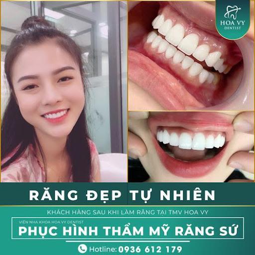 Hình ảnh khách hàng thực hiện bọc răng sứ tại Hoa Vy Dentist
