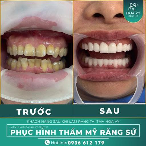 Khắc phục hoàn hảo hàm răng ố vàng