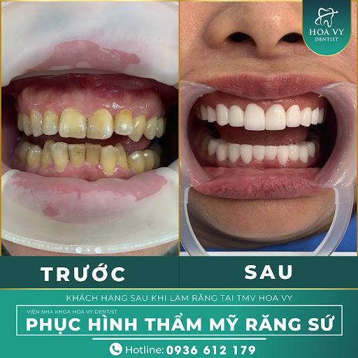 Làm răng sứ hoàn toàn không ảnh hưởng đến sức khỏe răng miệng của bạn