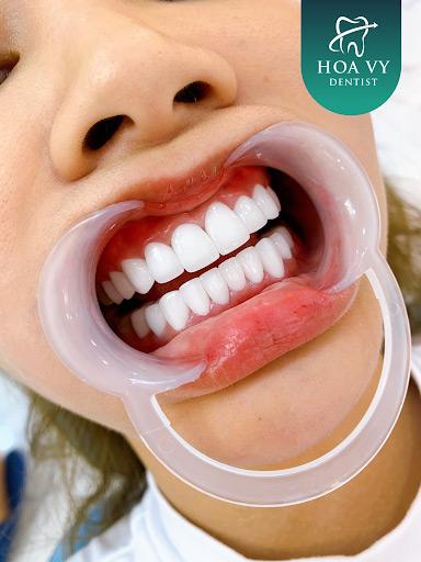 Mài răng cửa bọc sứ bằng kỹ thuật chuyên môn cao sẽ không mang đến cảm giác ê buốt