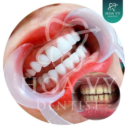 Mài răng cửa bọc sứ là phương pháp phục chỉnh hình phổ biến hiện nay