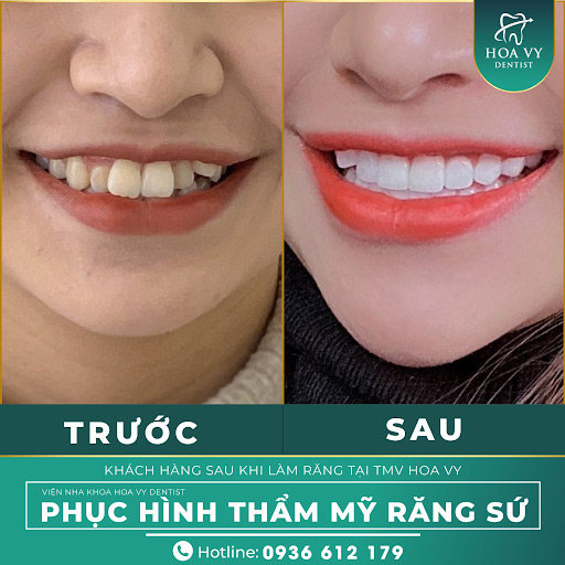 Mài răng giúp bọc răng sứ đạt độ thẩm mỹ cao.