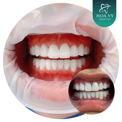 Mài răng là phương pháp phục chỉnh hình răng rất được ưa chuộng hiện nay