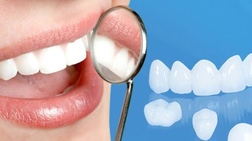 Phương pháp bọc răng toàn sứ thẩm mỹ