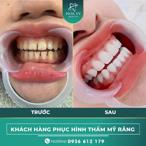 Răng sứ có tuổi thọ từ 7-15 năm chịu lực tốt, bền chắc
