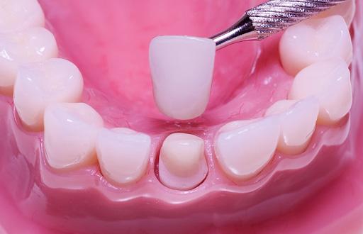 Răng sứ kim loại có thời gian sử dụng lâu.