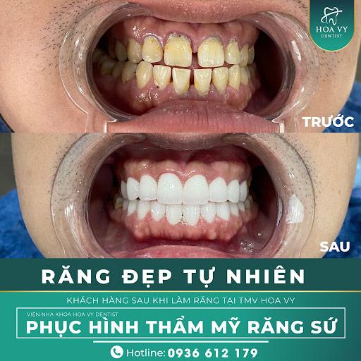 Bọc răng sứ Titan tại Nha Khoa Quốc Tế Hoa Vy Dentist