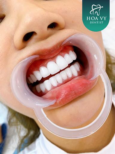 Răng sứ Venus có khả năng chịu lực tốt