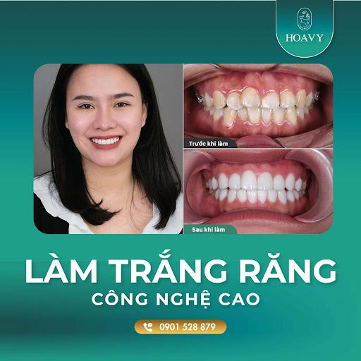 Thăm khám định kỳ để răng trắng sáng, chắc khỏe