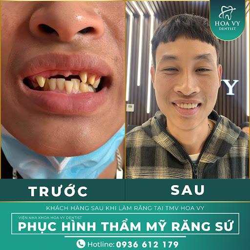 Tình trạng mất răng, răng xỉn màu cải thiện sau khi bọc răng sứ thẩm mỹ