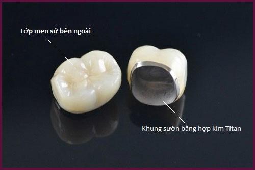 bọc răng sứ có lâu không