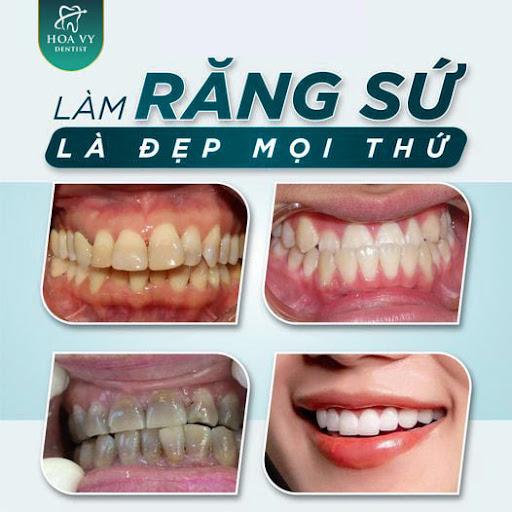 Bọc răng sứ mang lại nhiều lợi ích