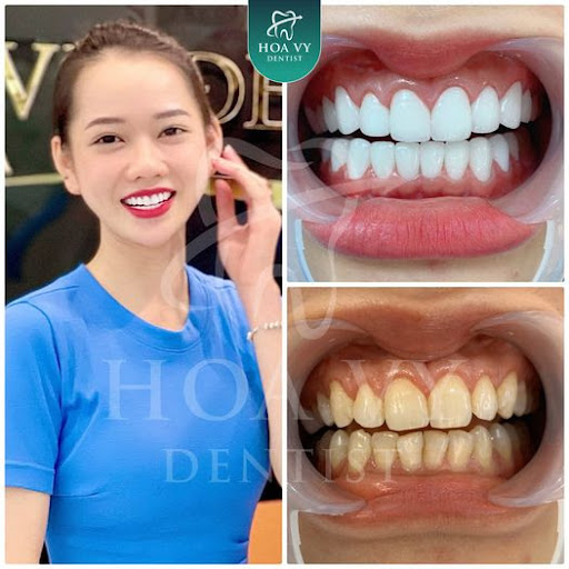 giá bọc răng sứ zirconia
