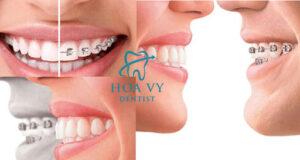 Niềng răng thích hợp với trường hợp răng hô, khấp khểnh nặng